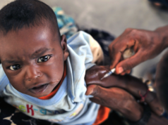 Masern-Impfung CDU Kita-Plätze